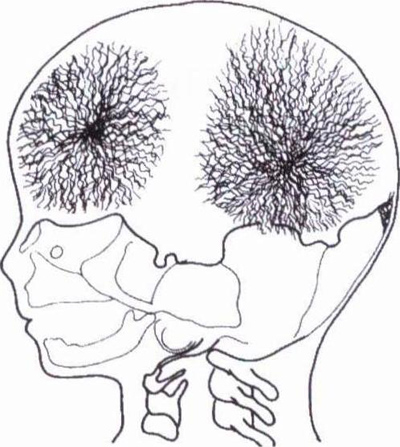 Рост костей свода черепа происходит в результате расширения или растягивания плоских костей под воздействием...