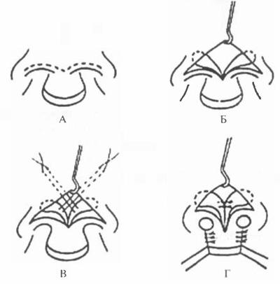 Схема коррекции носа через