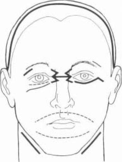 При переломе верхней челюсти
