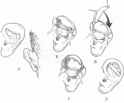 деформаций ушных раковин.