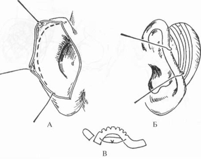 формой ушных раковин.