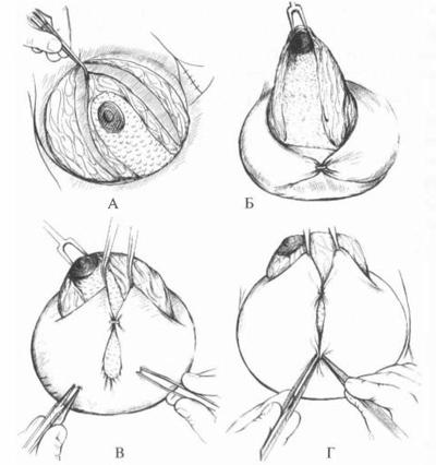Как правильно перетянуть грудь фото