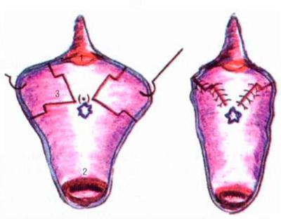 При изолированной гипертрофии малых половых губ, когда не требуется