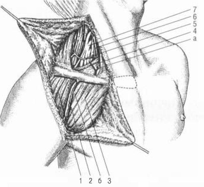 отдела плечевого сплетения