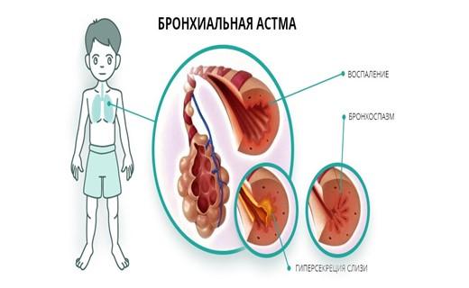 Бронхиальная астма у детей - симптомы, признаки, формы, степени, классификация