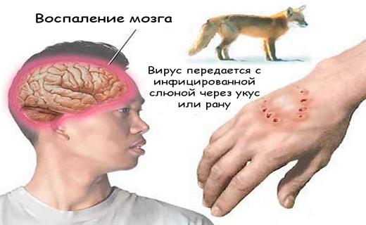 Бешенство симптомы лечение