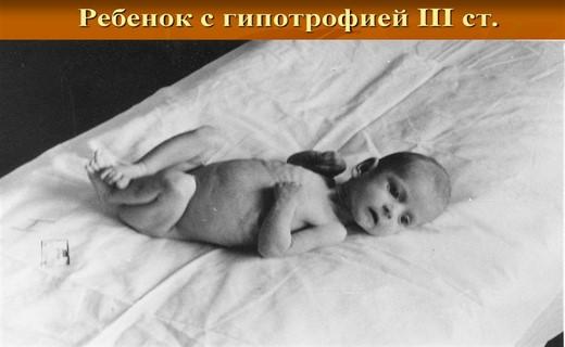 Гипотрофия у новорожденных детей