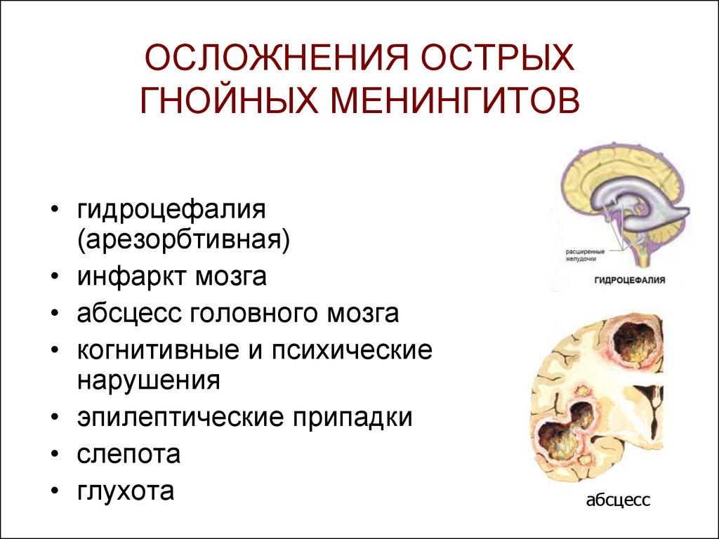 Гнойный менингит у новорожденных
