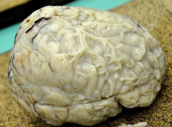 Осложнения гнойного менингита