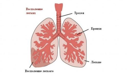 Хроническая пневмония в детском возрасте