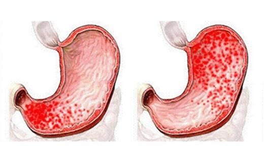Признаки гастродуоденита
