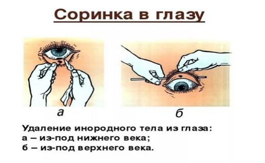 Попадание инородного тела в глаз