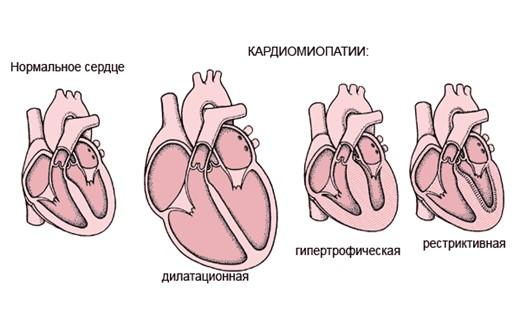 Сердечная кардиопатия