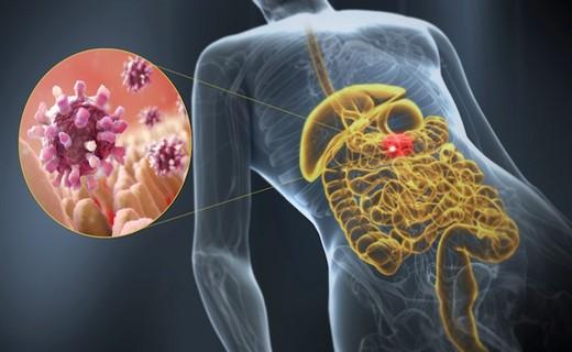 Вирус кишечной инфекции