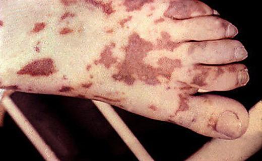 Очаг менингококковой инфекции
