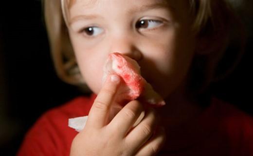 Осложнения менингококковой инфекции у детей