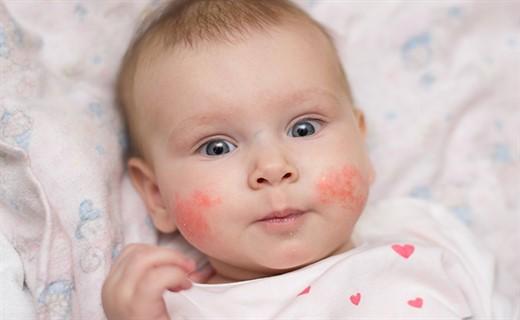 Пищевая аллергия на лице у детей