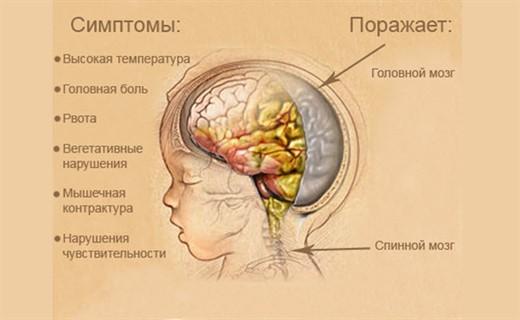 Менингит у новорожденных - симптомы и лечение