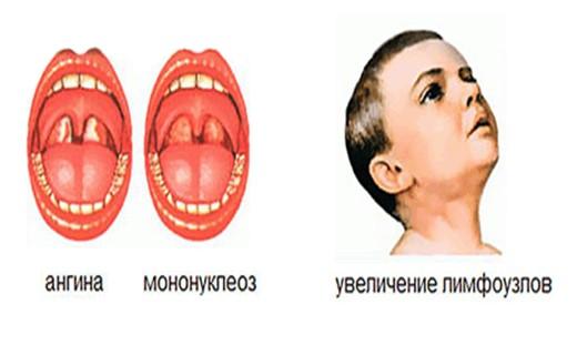 Мононуклеоз фото горла