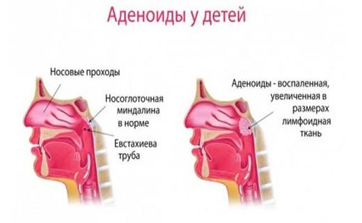 Аденоиды носоглотки