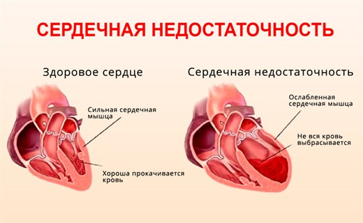 Острая сердечная недостаточность развитие