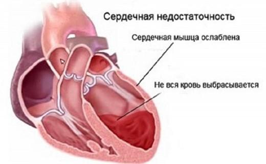 Острая сердечная недостаточность клиника{amp}#x9;