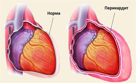 Перикардит сердца