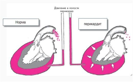 Клиника перикардита