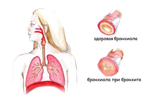 Острый бронхит у беременных история болезни 1