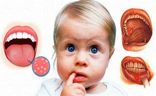 Стоматит фото во рту