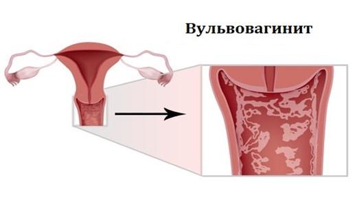 Домашнее фото русских женщин в зрелом возрасте (40 фото)