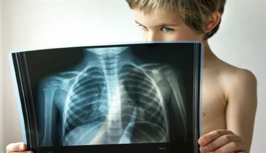 Как лечить хроническую пневмонию